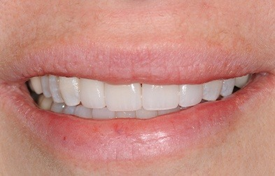 Gorgeous smile with porcelain veneers over damaged top front teeth