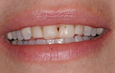 Damaged and discolored top front teeth before porcelain veneer placement