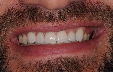 Properly aligned smile after braces treatment and porcelain veneer placement