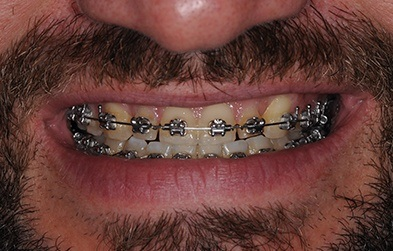 Patient with braces over discolored teeth