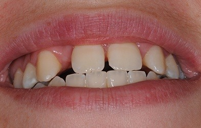 Uneven spacing due to congenitally missing teeth