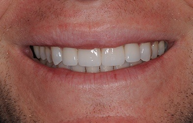 Gorgeous smile after dental crown restoration
