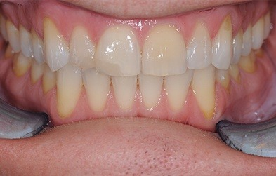 Damaged and discolored teeth before dental crowns