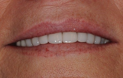 Patient's smile after full mouth restoration