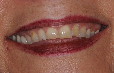 Patient's smile before full mouth restoration