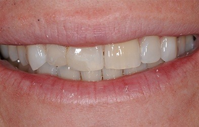 Patient's smile after cosmetic dental bonding