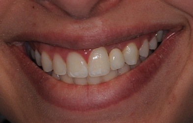 Patient's smile after single tooth dental implant placement