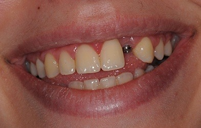 Patient's smile with missing tooth and dental implant post visible before tooth replacement