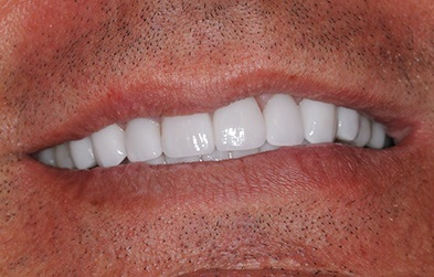 Patient's flawless smile after porcelain veneers