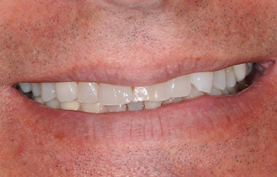 Patient's worn or yellowed teeth before porcelain veners