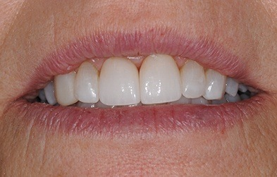Patient's beautiful smile after porcelain veneer placement