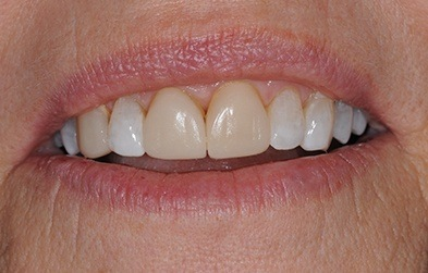Oversized and yellowed front teeth before porcelain veneers