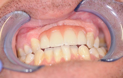 Front top teeth seamlessly replaced with a dental implant retained bridge