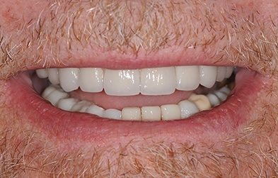 Smile restored with a dental implant full arch hybrid denture