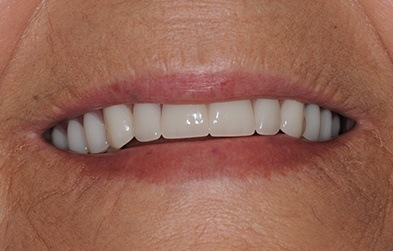 Smile restored with dental implant retained denture