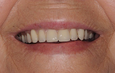 Discolored denture before replacement
