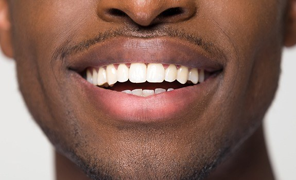Closeup of smile after cosmetic dental bonding