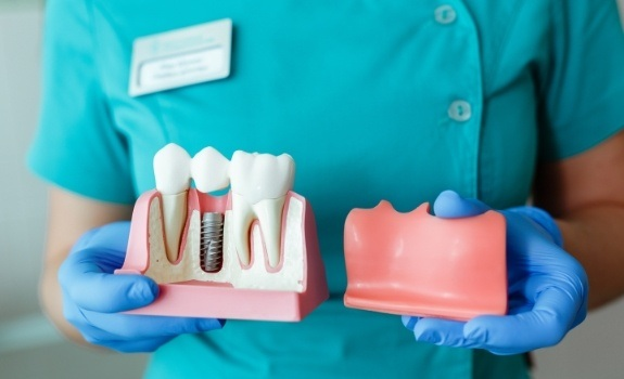Dentist holding up a model of a natural tooth and dental implant supported tooth