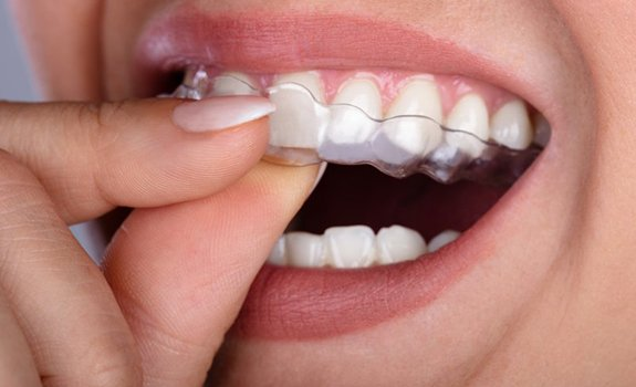 close up person inserting their aligners